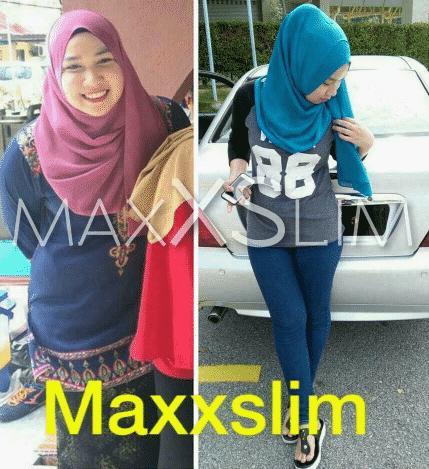 feedback maxxslim