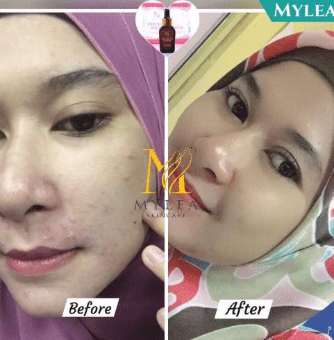 mylea freckles serum hrga
