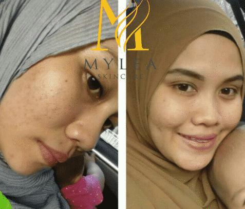mylea freckles serum kkm
