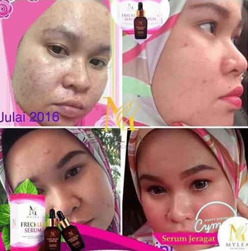 mylea freckles serum halal