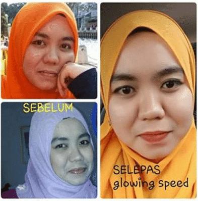 testimoni glowing speed skincare