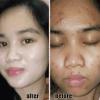 testimoni-dms-one-skincare
