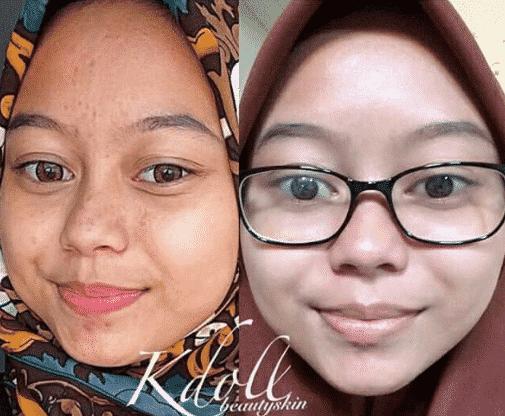 k doll beauty skin hq