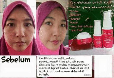 nurraysa beauty skincare kkm