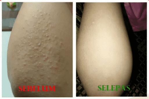 nurraysa beauty skincare review