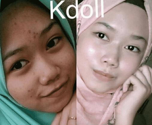 k doll beauty skin agent