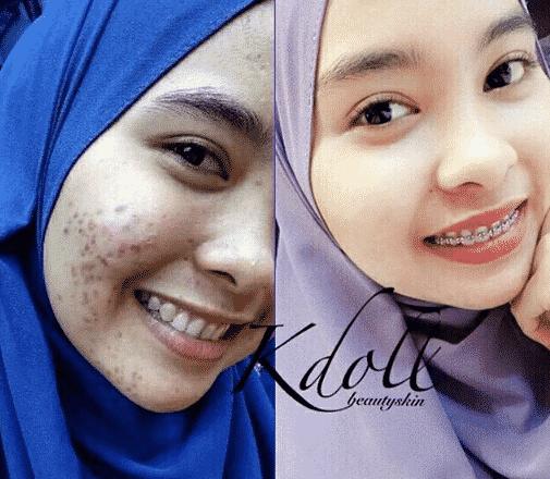 feedback k doll beauty skin
