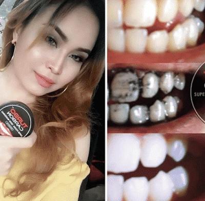 turbo carbon teeth whitening testimoni